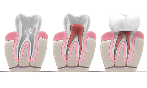 root-canal-